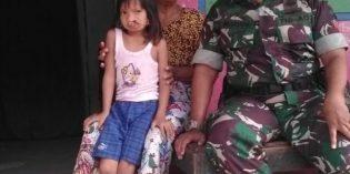 Bocah 7 Tahun Asal Bulakamba dapatkan Operasi Bibir Sumbing Hari Juang TNI AD